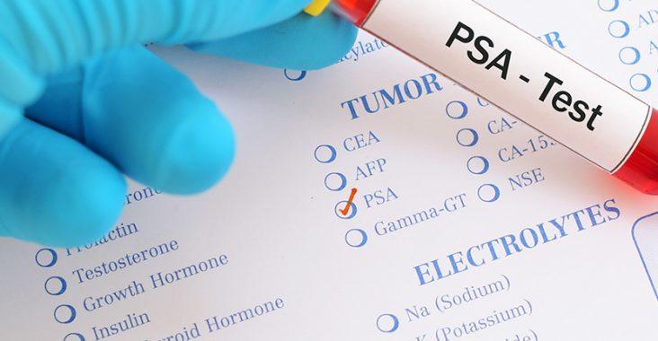 PSA_Test